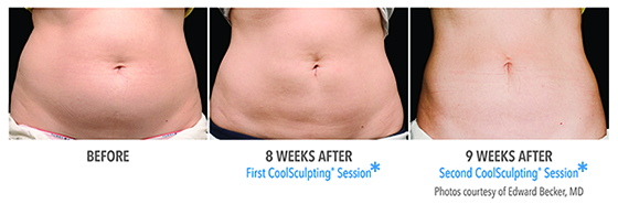 Coolsculpting effects